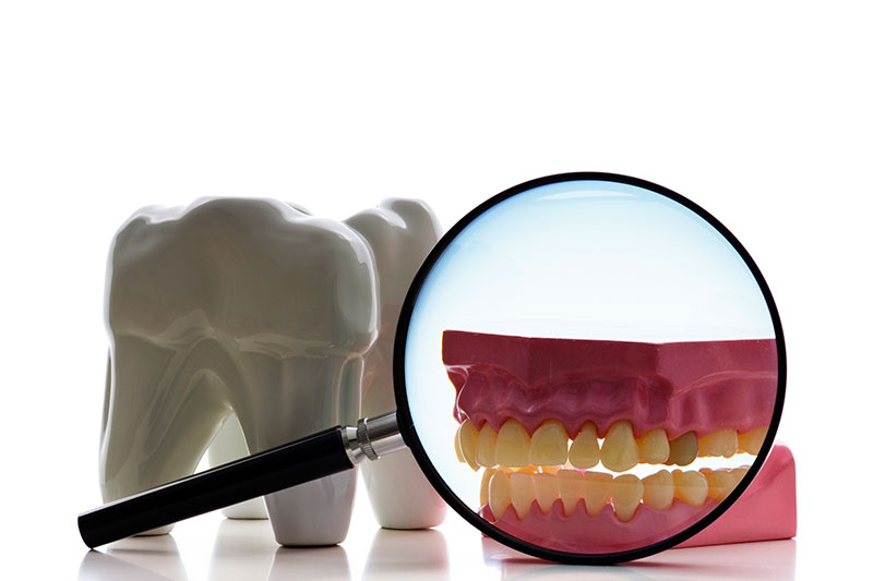 Root Canal - Dr. Ben Franz, Ketchum Dentist