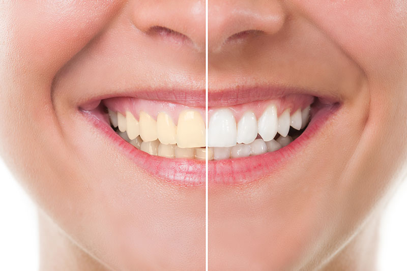 Teeth Whitening - Dr. Ben Franz, Ketchum Dentist